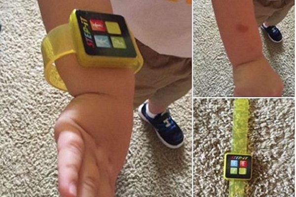 McDonald's Recalls Activity Tracker After Child's Arm Reportedly Burned
