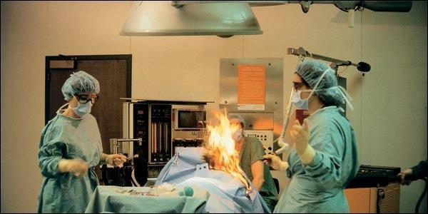 Fart Reportedly Sparks Fire During Surgery, Burns Patient