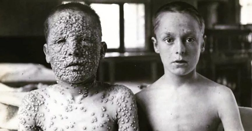 HIstorical photograph of two boys exposed to smallpox, one who had been vaccinated and one who had not.