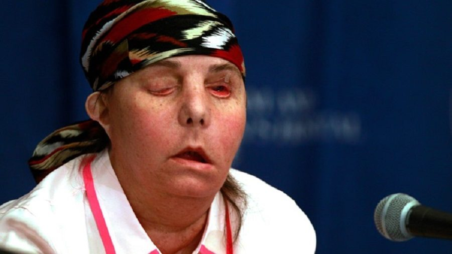 Face Transplant Recipient's Donor Face Now Failing
