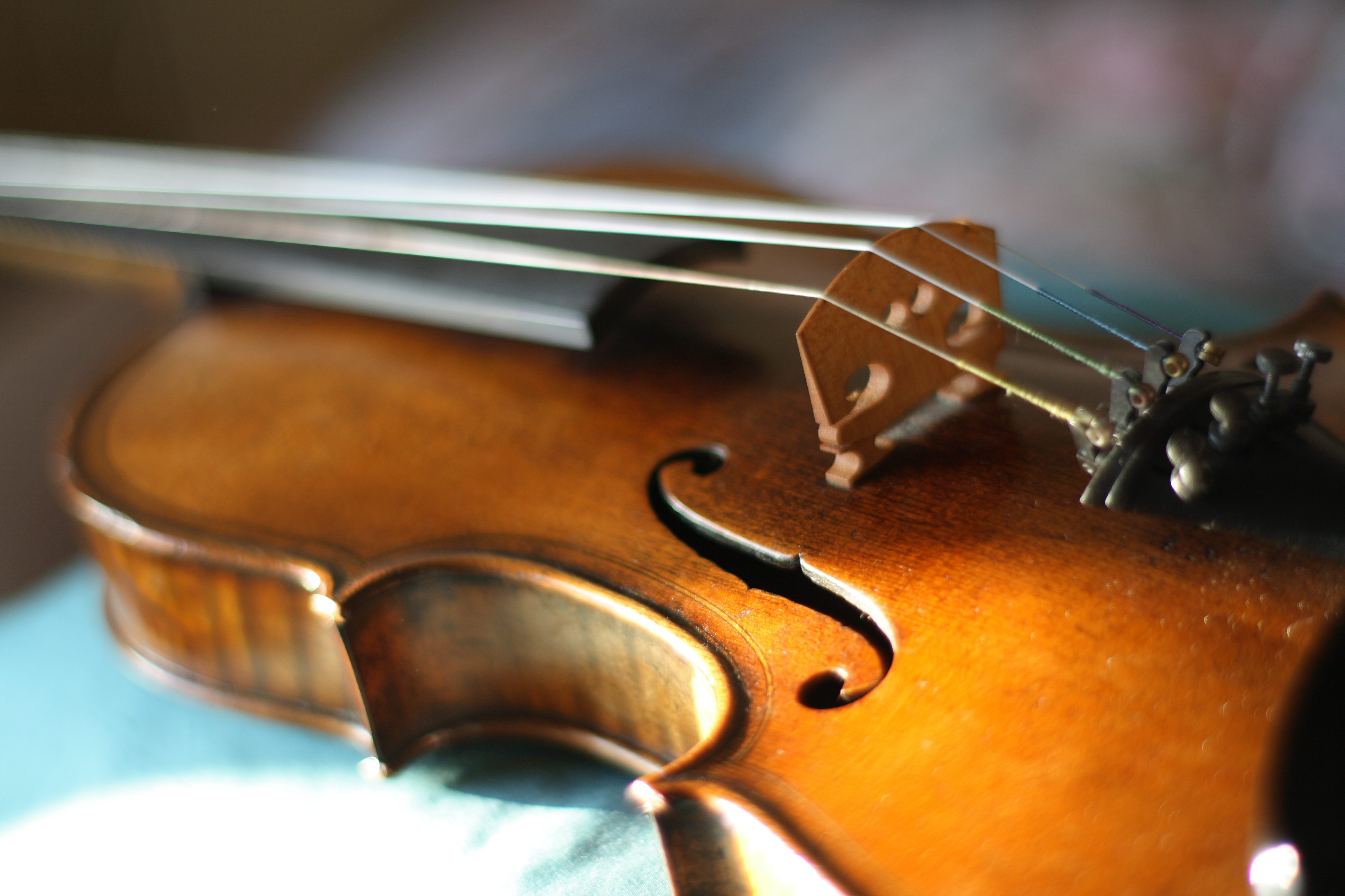 Patient Plays Violin During Unusual Brain Surgery