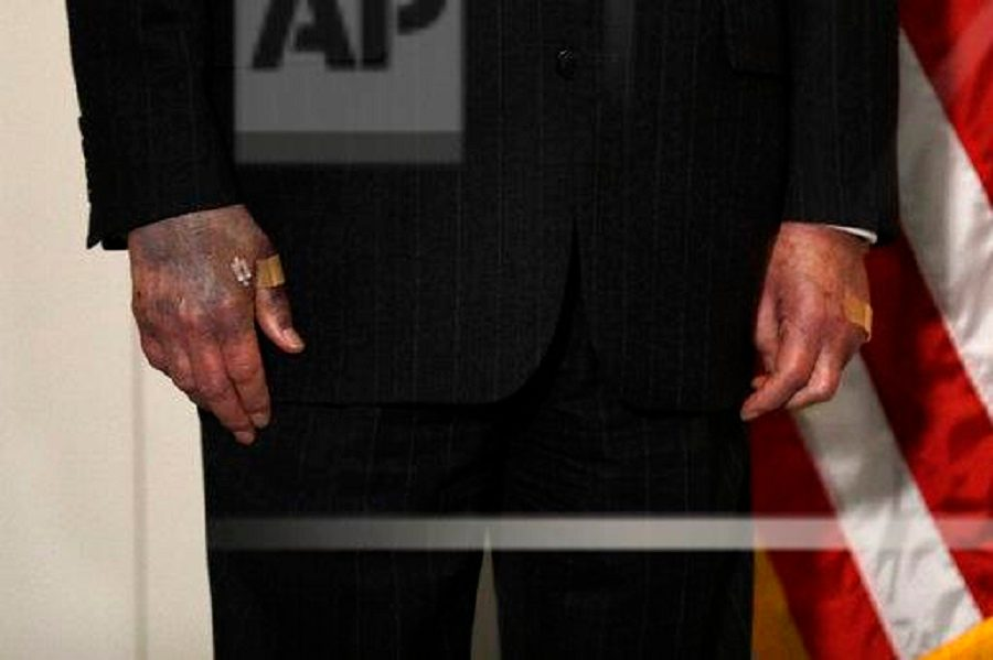Is This a Photograph of Mitch McConnell's Bruised and Discolored Hands?