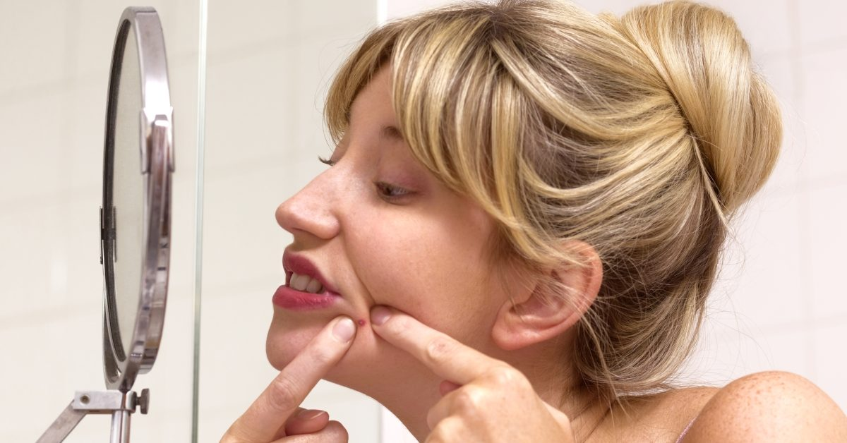 No, Pimple Popping Videos Were Not Banned on YouTube - snopes