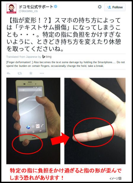 Fact Check Will Holding A Smartphone Cause A Finger Deformity
